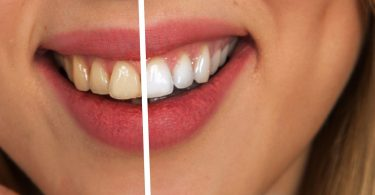 9 Reasons Why You Should Not Throw Away Banana Peels Again Whitening your teeth